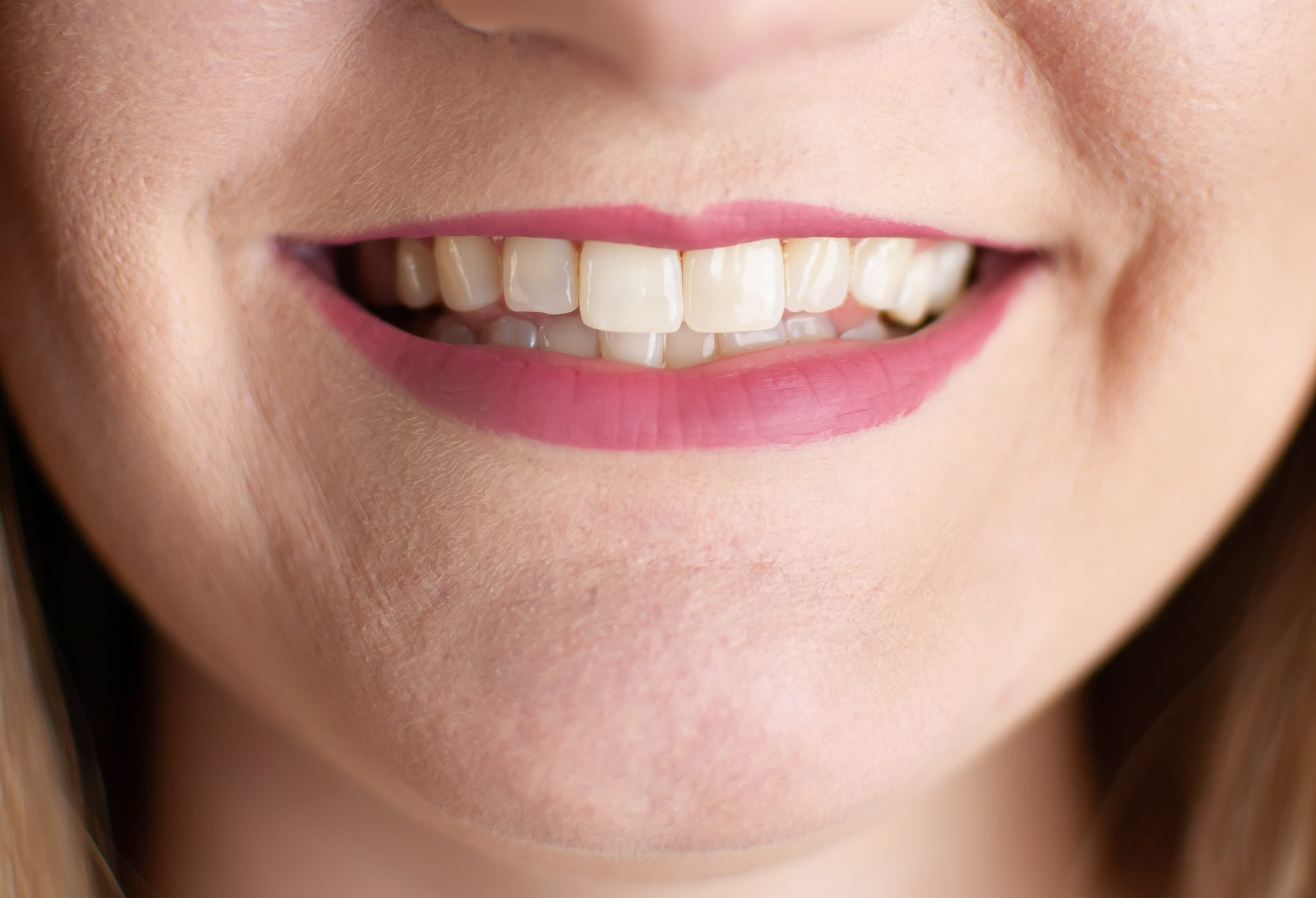 How to whiten sensitive teeth